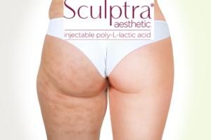 Sculptra Treatment For Cellulite In TX 300x199